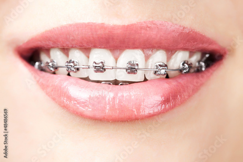 Poster teeth with braces