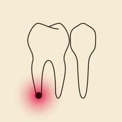 Toothache - Pulpitis