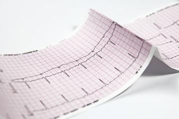 Electrocardiogram, heart EKG test