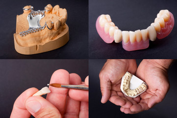dental wax models for dentist theme