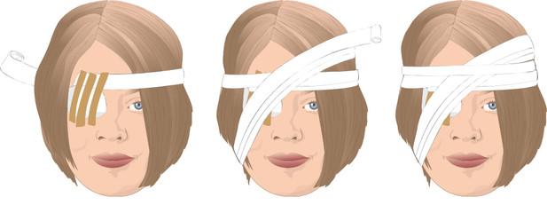 Frau mit Kopfverband