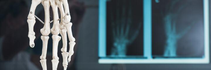 röntgenbild von einer hand