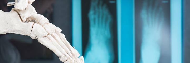 füße auf dem röntgenbild