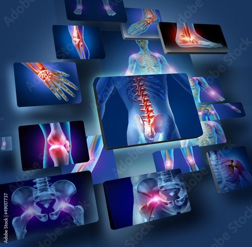 Leinwandbild Motiv Human Joints Concept