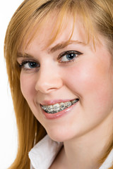 Beautiful young woman with brackets on teeth