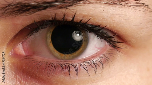 womans dilated pupil