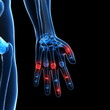 3d rendered illustration of painful finger joints
