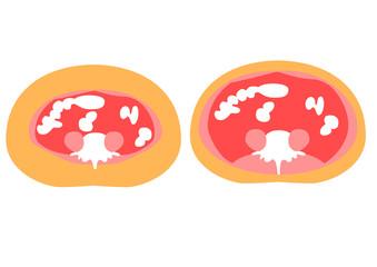 内臓脂肪と皮下脂肪の断面図