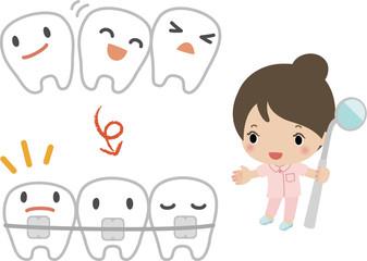 歯列矯正のイメージ