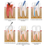 root canal treatment english description, tooth 3 of 5 poster