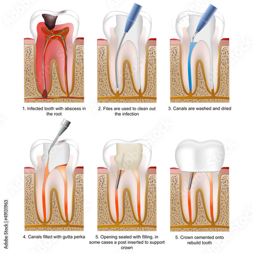 root canal treatment english description, tooth 3 of 5