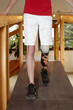 Male prosthesis wearer training to walk