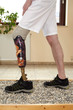 Male prosthesis wearer learning to transfer weight