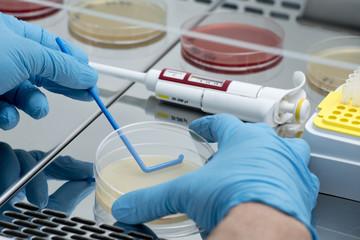 Siembra bacteriana en placa rodac con pipeta