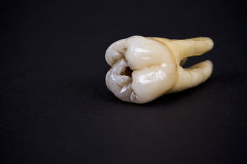 artificial ceramic teeth