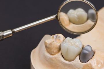 ceramic crown for molar teeth