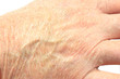 Close up of the back of a mans hand showing very dry skin