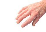 Womans hand showing the deforimity of arthritis isolated poster