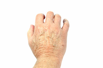 Back of mans hand showing very dry skin isolated