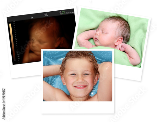 Image of newborn baby like 3D ultrasound and same baby 7 days ol