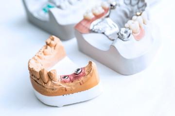 Dental_06
