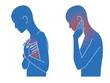 動悸のぼせの症状