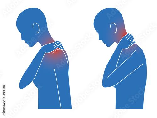 肩こり首こりの症状