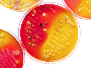 Bacteria colonies on petri dishes, isolated on white