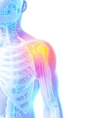 3d rendered illustration - painful shoulder
