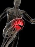 3d rendered illustration - painful knee