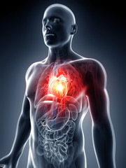 3d rendered illustration - heart attack