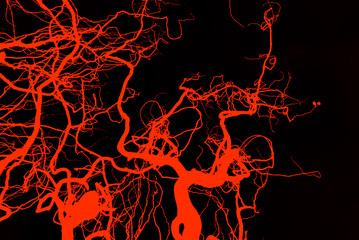 Abstract blood vessels