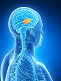 3d rendered illustration - brain tumor poster