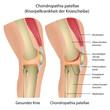 Knie Krankheit Chondropathia patellae