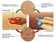 osteoblasti & osteoclasti