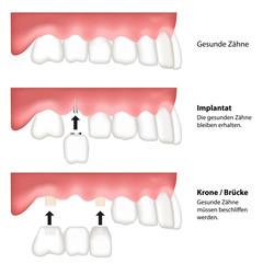 zahn ersatz illustration - vergleich brücke implantat