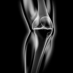 Kniegelenk - Röntgenbild - 3D Grafik / 3D Illustration