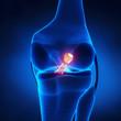 Torn Posterior Cruciate Ligament