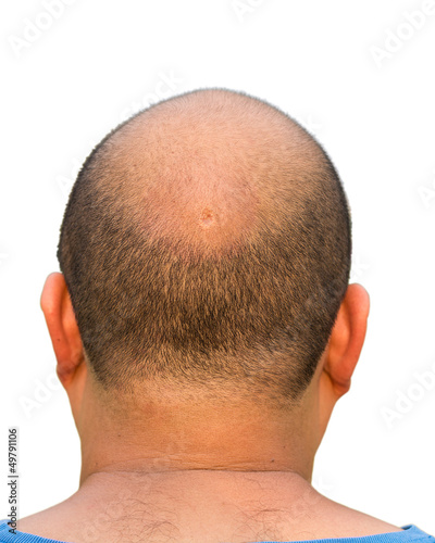Bald head isolation