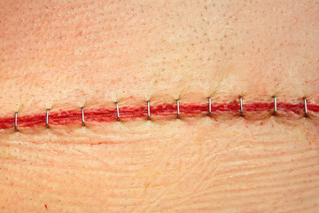 Modern surgical suture.