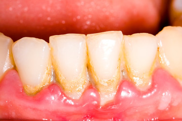 Dental tartar