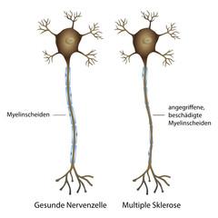 nervenzelle - multiple sklerose