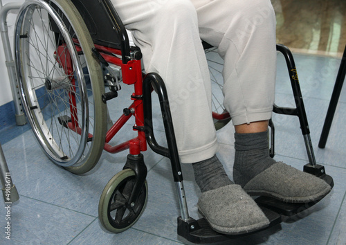 patient with leg problems over the wheelchairs