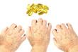 Hands reaching for vitamin E capsules. Dry shin concept
