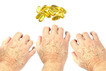 Hands reaching for vitamin E capsules. Dry shin concept
