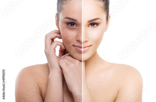 A split photo of a woman before and after retouch