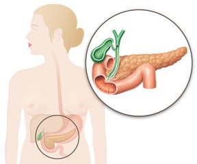 Frau mit  Bauchspeicheldrüse und Gallenblase (Lage/Position und