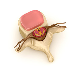 Spinal segment with a disk