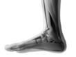 Постер, плакат: 3d rendered illustration of the human foot