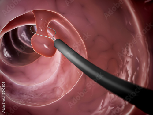 3d rendered illustration of a polyp removal